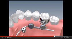 Vorschaubild OrthoLox-Video